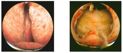 Visione endoscopica della prostata prima e dopo intervento di TURP