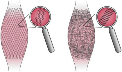 筋膜の模式図