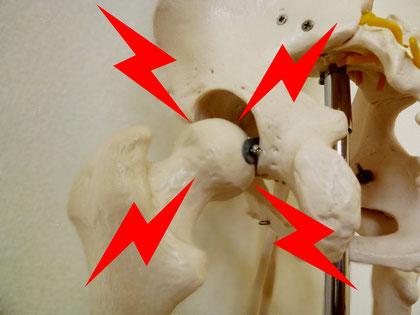 股関節の痛みや動き・変形性股関節症