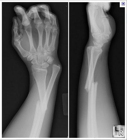 Exemple de fracture du cubitus et du radius chez l'Homme. Source : internet.
