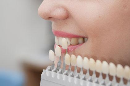 Bestimmung der Zahnfarbe vor der Aufhellung mit Hilfe einer Farb-Skala beim Zahnarzt.