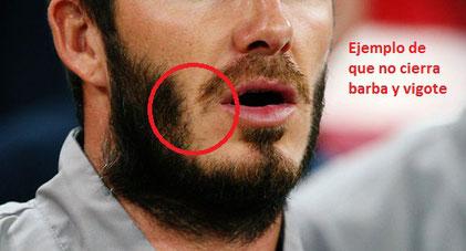 por que no funciona minoxidil barba