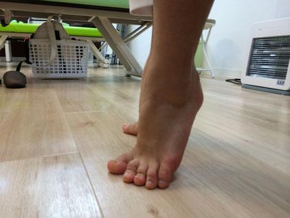 左足首(接写) 痛みは無いが底屈(指先を下に伸ばす)し難い