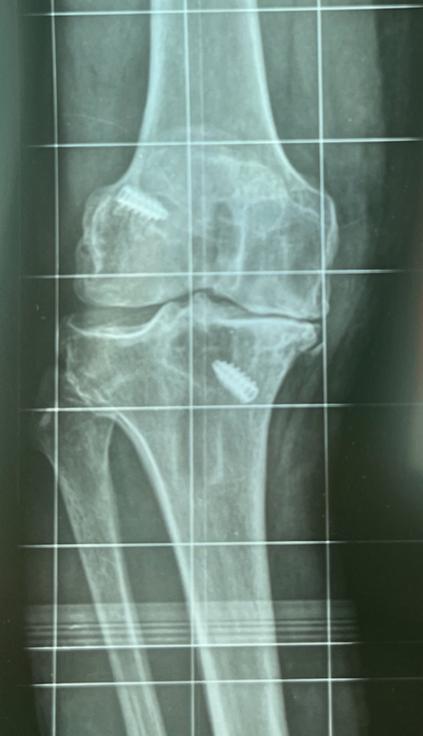 L'artrosi può essere reattiva a un cambiamento della biomeccanica interna del ginocchio, spiega il Dottor Lavanga.