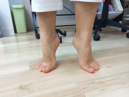 患者さま(バレリーナ)の足首 左足首が底屈し難い状態