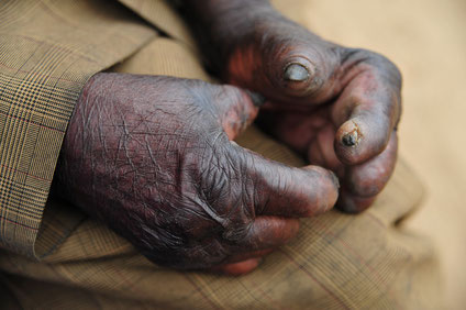 Lepra Heilung