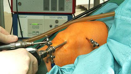 Kniearthroskopien sollen in den Kantonen Zürich und Luzern nur nach ambulant durchgeführt werden dürfen.