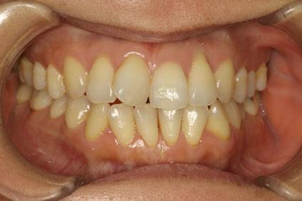 歯茎が下がる