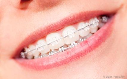Schöne gerade Zähne in München Zahnarzt Michael Riedel