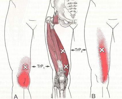 膝のトリガーポイント、鵞足