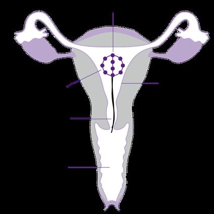 Darstellung der Lage des IUB Ballerine Kupferballs in der Gebärmutter