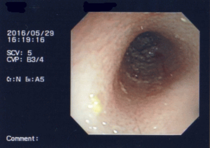 猫小細胞性リンパ腫