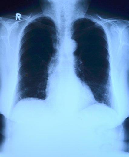 Die ärztliche Osteopathie beehandelt auch die inneren Organe