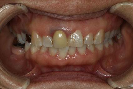歯茎の黒ずみ