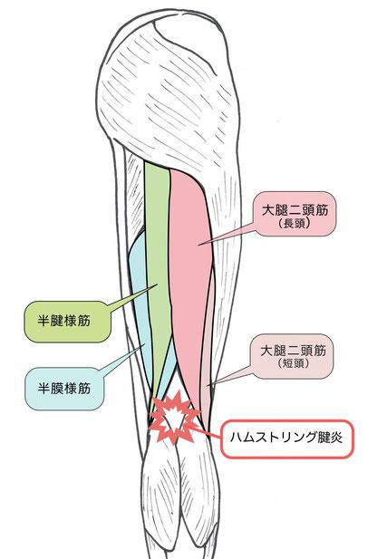 ハムストリング腱炎説明