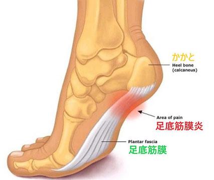 ドクターバンカイロプラクティック:Dr.Ban Chiropractic in Osaka:足底筋膜炎