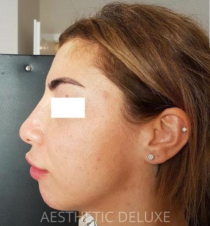 Nasenkorrektur und Kinnkorrektur mit Hyaluron vorher nachher Bilder, nach der Behandlung