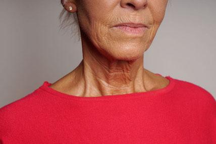 foto aging invecchiamento cutaneo esposizione solare uv