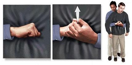 Compresiones abdominales o Heimlich