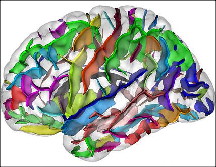 Une vue du cerveau (sillons) en neuroimagerie