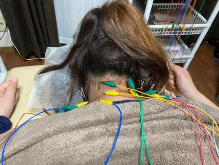 小牧 鍼灸 はり 治療 腰痛 坐骨神経痛 肩こり 首こり 自律神経 頭痛 めまい 生理痛