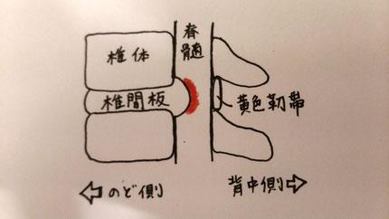 奈良県で頚椎症治療