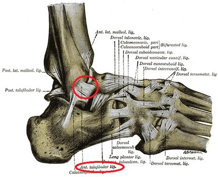 *赤い丸で囲まれている靭帯が前距腓靭帯です。