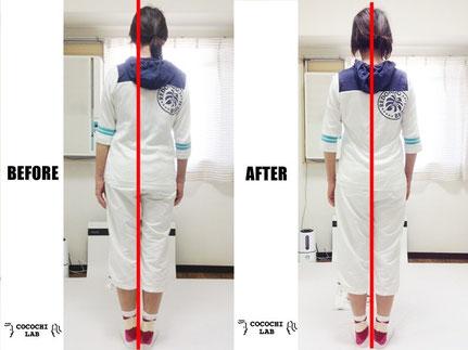 調整前と調整後の姿勢比較写真