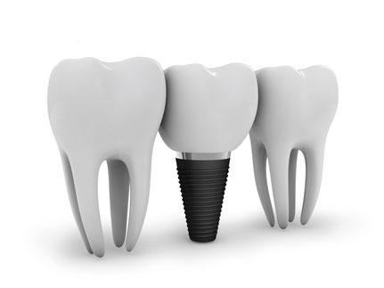 Implantate Zahnersatz St. Leon-Rot