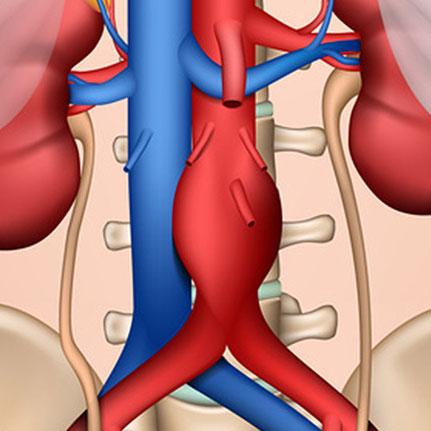 Ambulantes Gefäß- und Laserzentrum - Aortenaneurysma