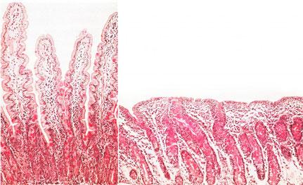 Links: Gesunde Darmoberfläche. Zahlreiche Ärmchen ragen ins Darminnere, um möglichst viele Nährstoffe aufnehmen zu können. Rechts: Zöliakie-Darm. Die Immunreaktion hat die Ärmchen zerstört, Nährstoffe werden nur noch schlecht aufgenommen. Bild: DZG e.V.