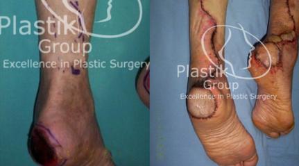 cirugias reconstructivas