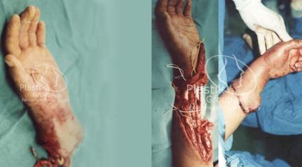 Implante de mano