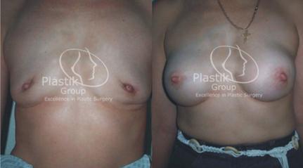 reconstruccion mamaria