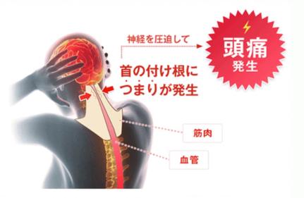 首の付け根に詰まりが発生すると、神経を圧迫して頭痛が発生します。