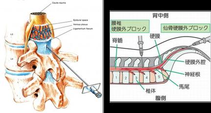 硬膜外ステロイド注射の解剖