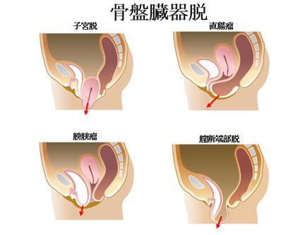 ブログ 子宮 脱 手術