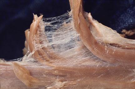 Die Faszien gleichen optisch einem Spinnennetz - sie verbinden alles miteinander.