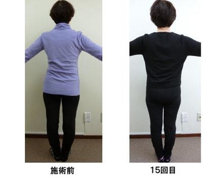 小平 変形性股関節症