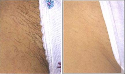 Haarentfernung mit IPL Bikinilinie vorher nachher