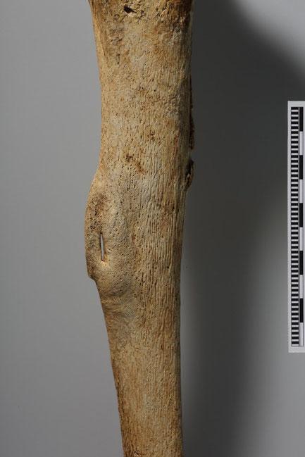 Détail sur la néo-formation osseuse sur le bord extérieur du tibia droit  (Niki Gail, OEAI, the Austrian Archaeological Institute)