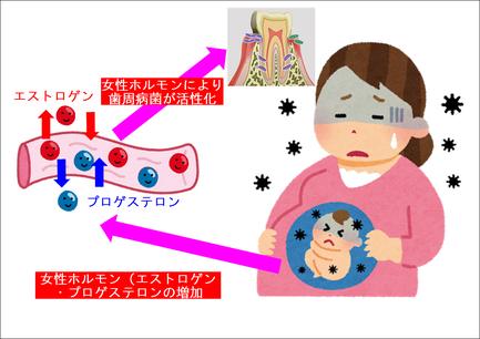 妊娠による歯周病への影響(女性ホルモン:エストロゲン・プロゲステロン)