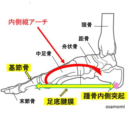 足底腱膜炎の痛みは昭島市のオサモミ整体院。拝島駅から無料送迎サービス。