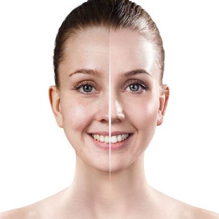 pelle spenta asfittica opaca skincare e trattamenti utili