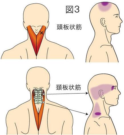 頭板状筋・頚板状筋トリガーポイントによる痛みとしびれの領域