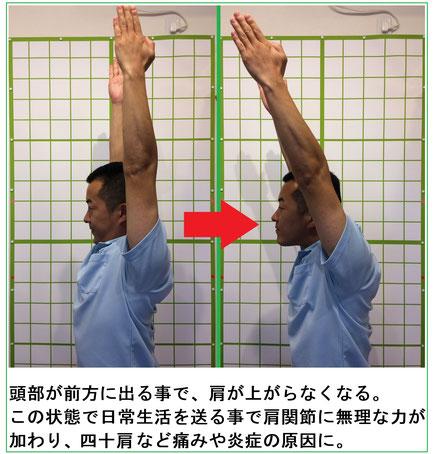 佐倉市かぶらぎ整骨院・整体院 頭部が前方に出る事で両手が上がりにくくなるイメージ画像