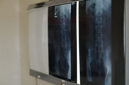 かぶらぎ整骨院・整体院ブログ 整形外科レントゲン写真イメージ