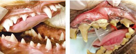 左:健康な歯|右:歯周病の歯
