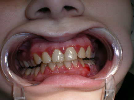 Infection in gums