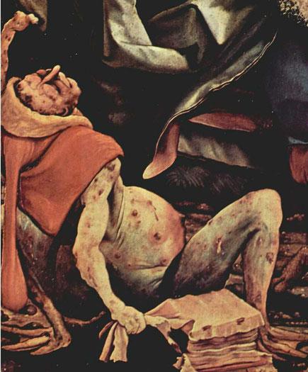 Detail des Isenheimer Altars. Kranker mit aufgeblähtem Bauch, Pestbeulen und gangrösem Arm